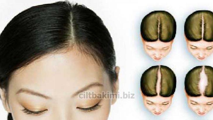 Saç Dökülmesine Ne İyi Gelir Saç Dökülmesi İçin Kürler