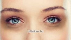 Göz Altı Morlukları Tedavisi Göz Altı Morluklarına Çözüm